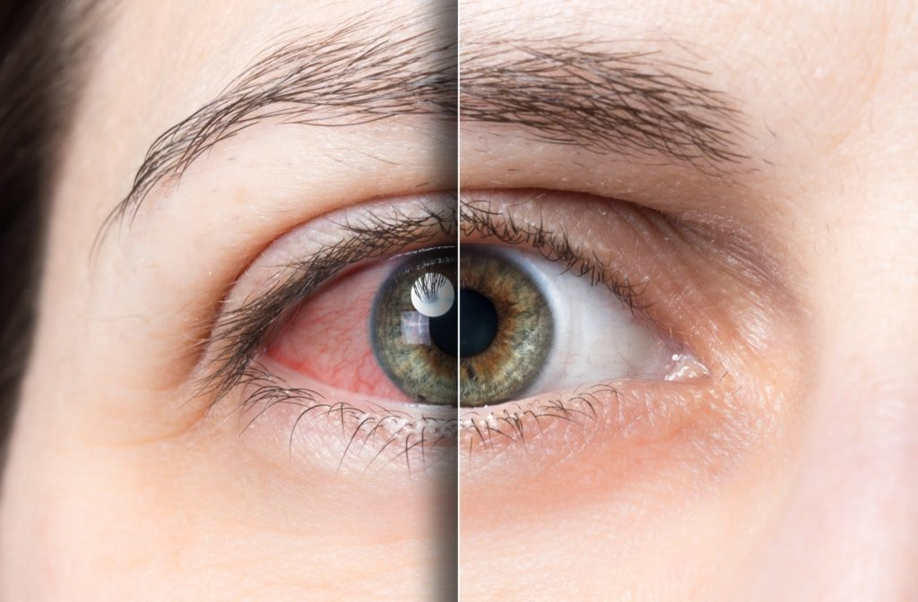 A woman's eyes before and after receiving dry eye treatment