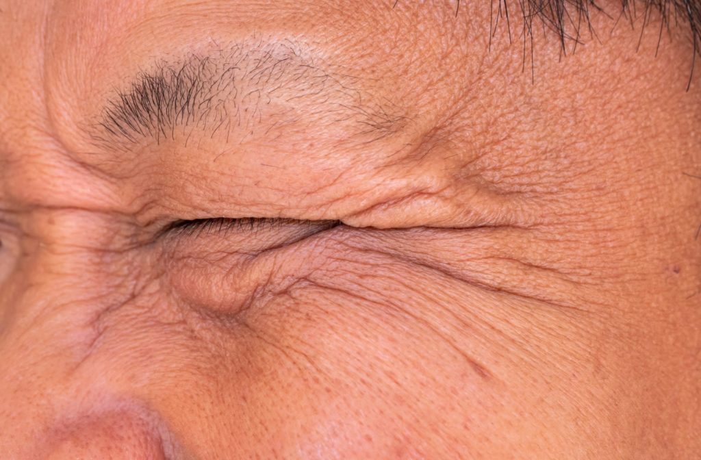 A man with closed eyes caused by symptoms of dry eye irritation