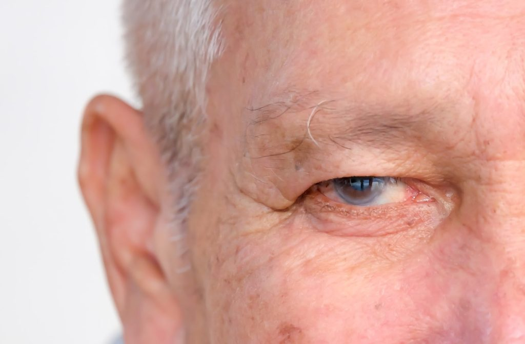Older man with signs on glaucoma in his left eye.