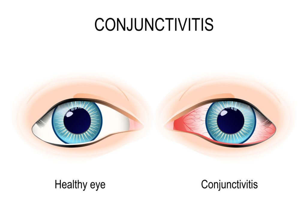 Illustration comparison of healthy eye on the left and conjunctivitis eyes on the right