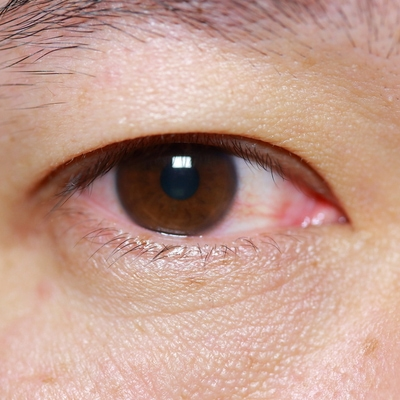 Close up of eye with pink eye (Conjunctivitis)